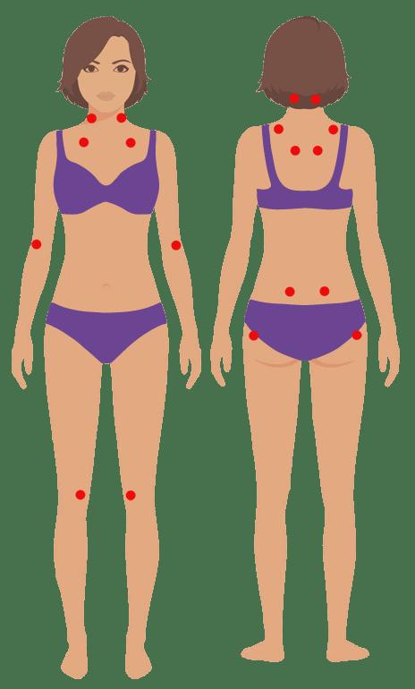 What Is Fibromyalgia Fibromyalgia Support Group Long Eaton